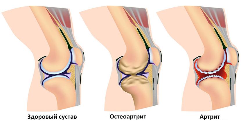 Здоровый сустав, остеартрит, артрит